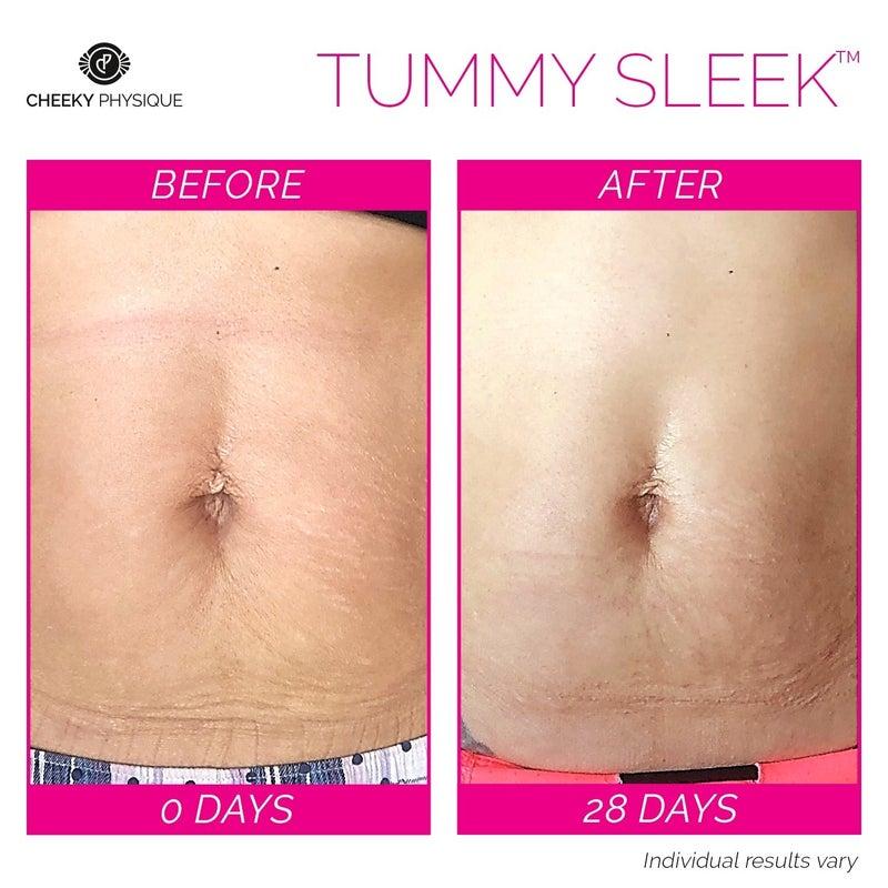 Tummy Sleek Serum