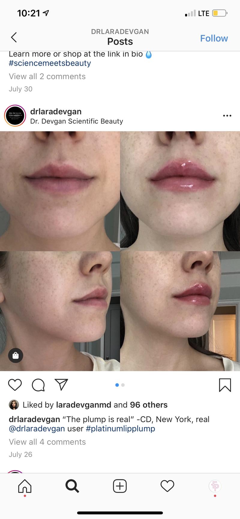 Dr. Lara Devgan Platinum Lip Plump SPF 30