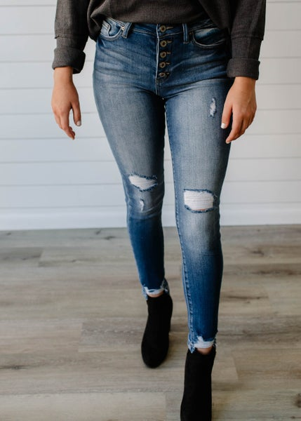 Ross - Button Fly Distressed Skinny