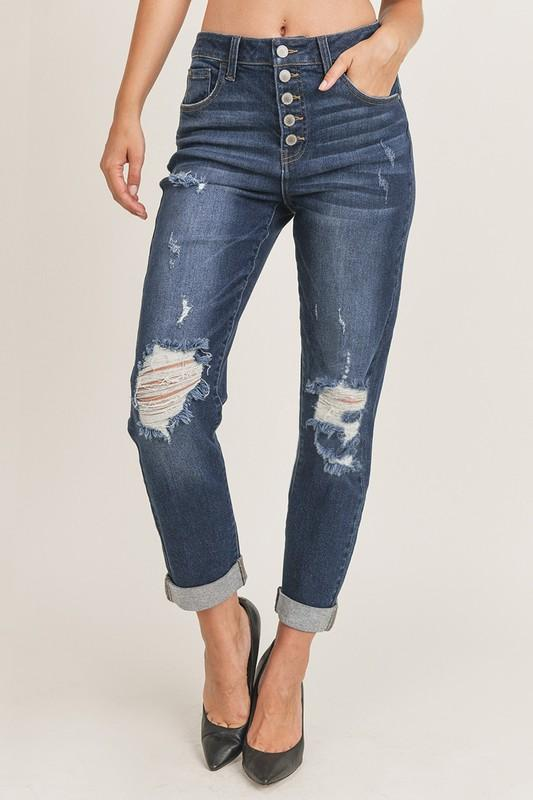 M10 Risen Button Fly Mom Jeans