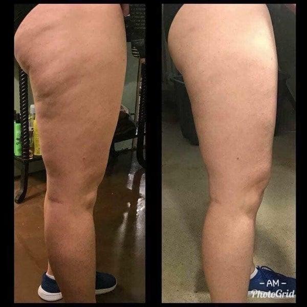 Cellulite Cream - Dermatic Effects 5 fl. Oz.